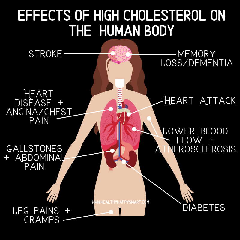 Cholesterol guidelines + Disease